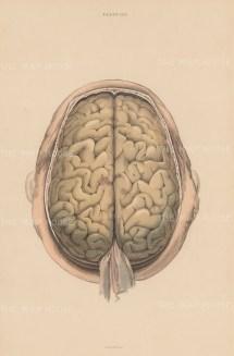 Brain: Cerebrum and Durer mater. Plate LXIX