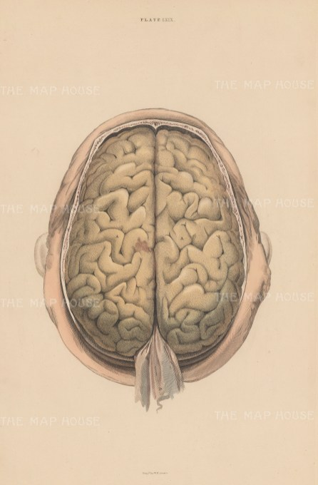Brain: Cerebrum and Durer mater. Plate LXIX