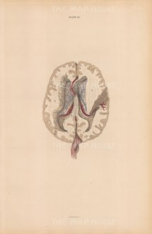 Hempisheres of the Cerebrum (A) Cerebellum (B), Spinal Cord (C) and Durer Mater (D). Plate LX.