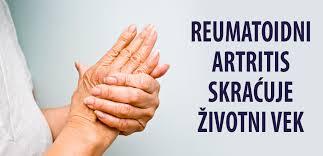 Reumatoidni artritis skracuje zivotni vek