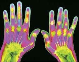 Medicus reumatoidni artritis