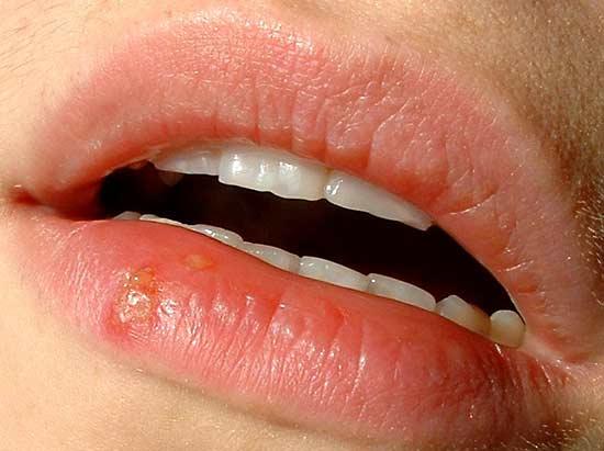 groznica herpes simplex