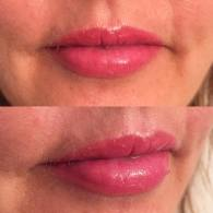 Lips healed after 8 weeks