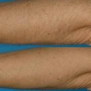 Permanente Haarentfernung Alexandrit-Laser