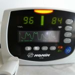 Nonin Avant 9700 Pulse Oximeter with Finger Probe W/O Power Supply – Used