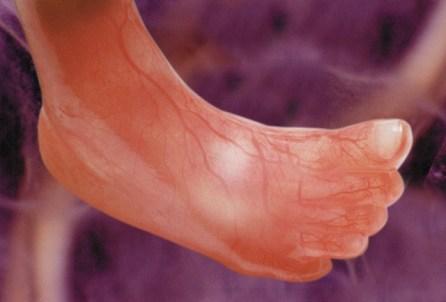 Nóżka dziecka ok. 12 tygodni od poczęcia. Fot.: J. Walczewski