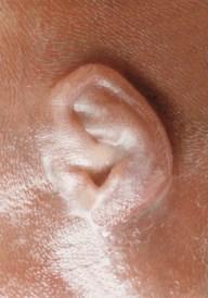 Ucho dziecka ok. 3,5 miesiąca od poczęcia. Fot.: A. Zachwieja