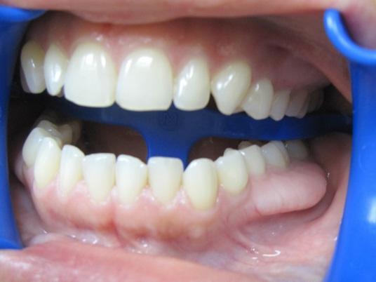 Экзостоз после удаления зуба - костный нарост на десне и ...