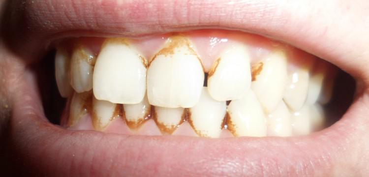 Интересные стоматологические мифы и факты от чего зависит здоровье человеческих зубов