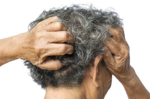 Old woman felt a lot of anxiety about hair loss and itching dand