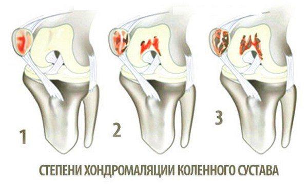 boli ale articulațiilor genunchiului acest lucru