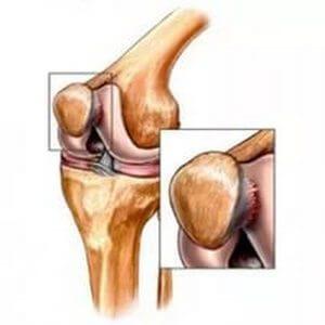 Genunchiul inflamației tendonului tratamentul cu periartrită