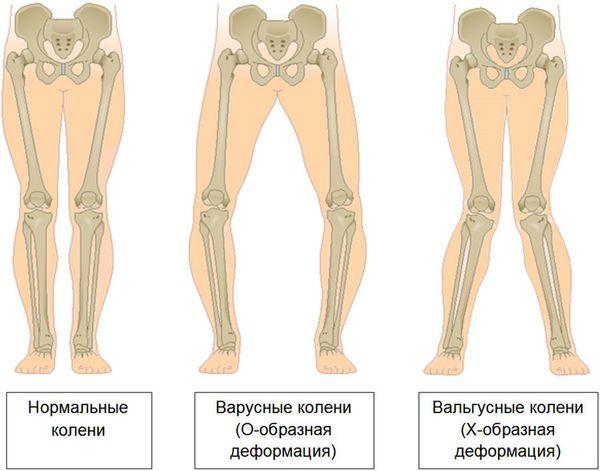 Деформация нижних конечностей в результате запущенного артроза коленных суставов