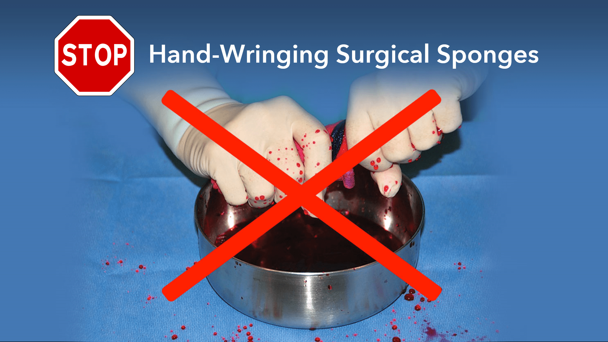 Stop Hand-wringing Surgical Sponges