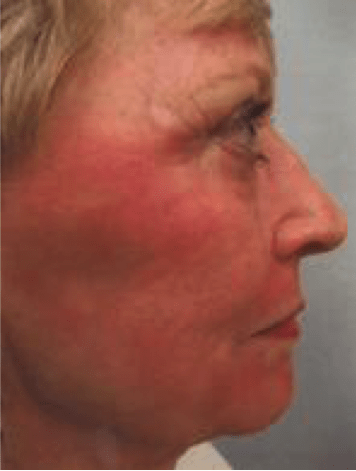 CO2 Fractional Laser Resurfacing | Procerus Skin Care Ann Arbor