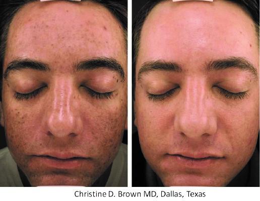 MicroPen Resurfacing | Procerus Skin Care Ann Arbor