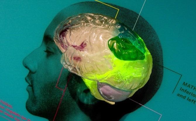 que pasa en el cerebro en el estado de coma