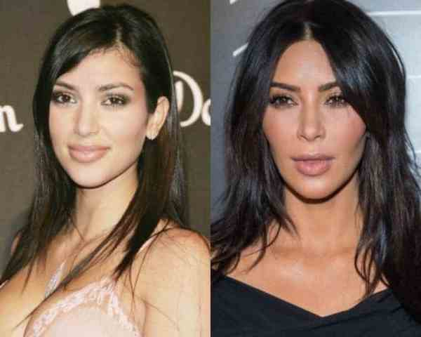 Kim kardashian bichectomia