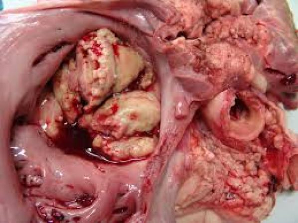endocarditis cronica