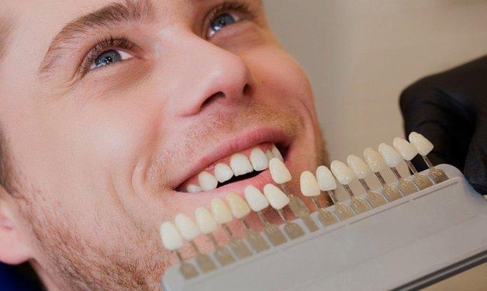 Carillas dentales tipos