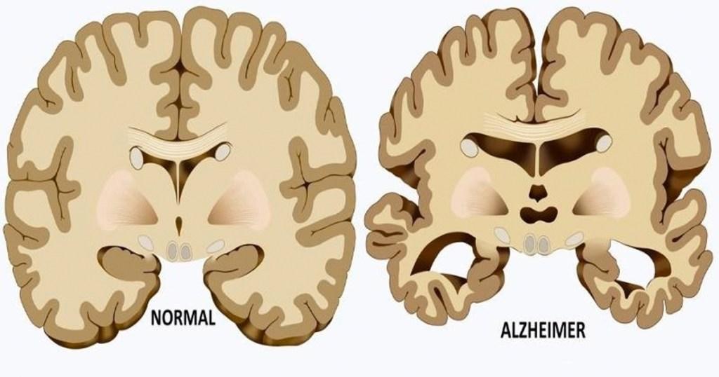 comparación cerebro normal y cerebro con Alzheimer