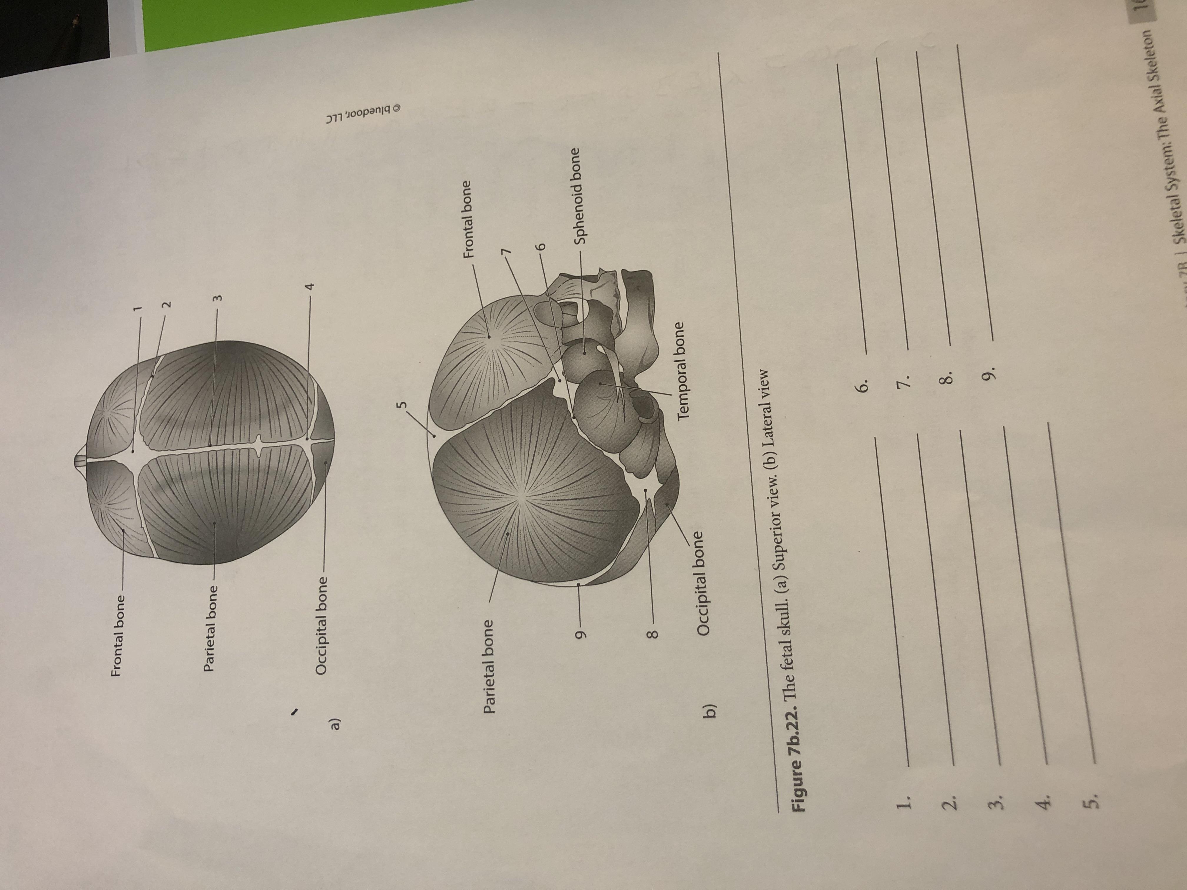 Answered Frontal Bone Parietal Bone 3 Occipital