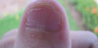 Conheça tratamentos que ajuda a combater as principais doenças de unhas