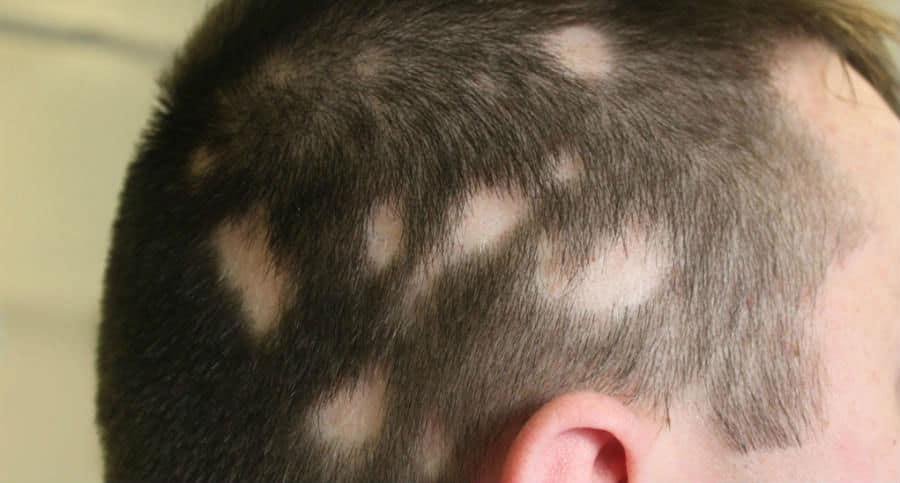 alopecia auto induzida - tricotilomania