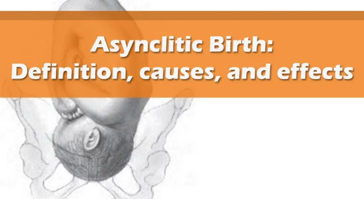 Asynclitic Birth Definition, causes, and effects