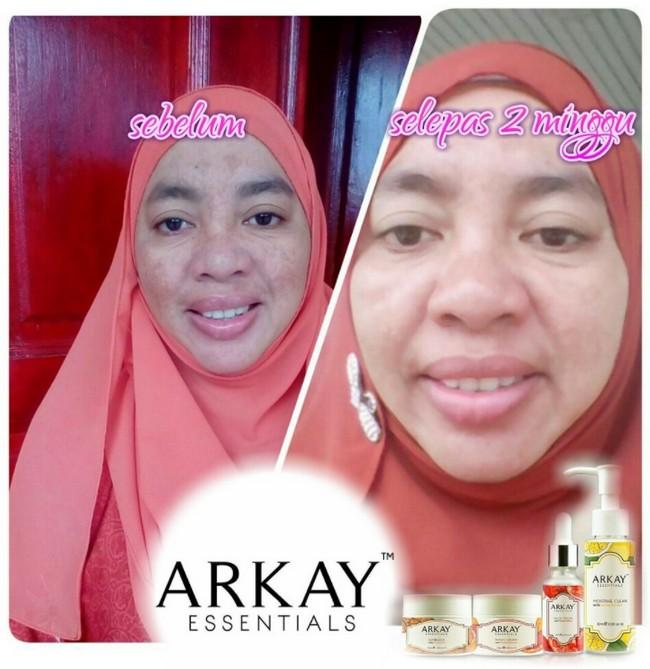 testimoni-pengguna-arkay-skincare-4