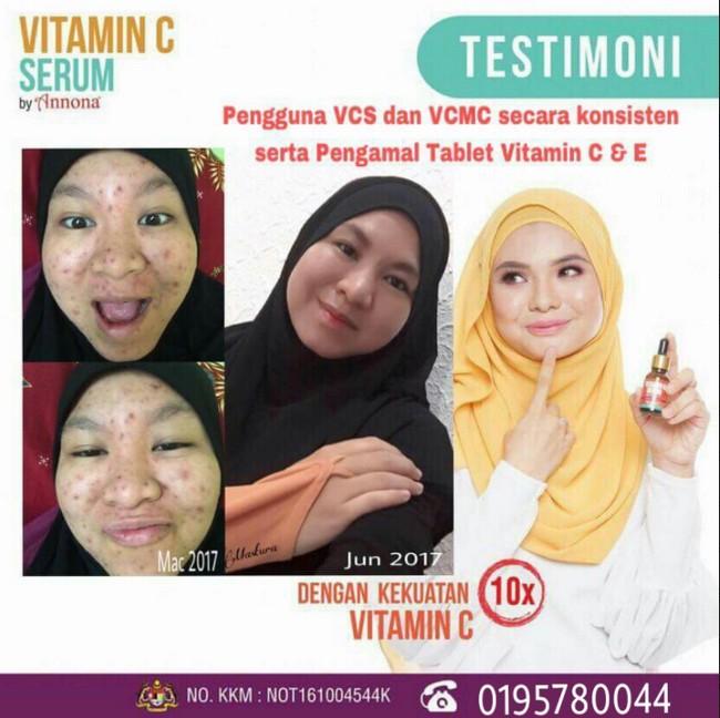 testimoni-pengguna-vitamin-c-serum-4
