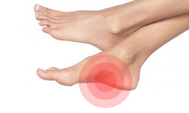 Simptom Sakit Tapak Kaki Tengah