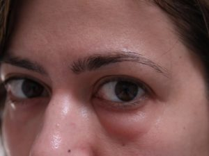 Làm thế nào để nhanh chóng loại bỏ sưng lên khỏi mắt