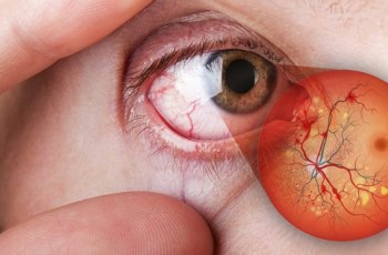 Doutor Patrick Rocha Alerta Sobre Cegueira Em Diabéticos