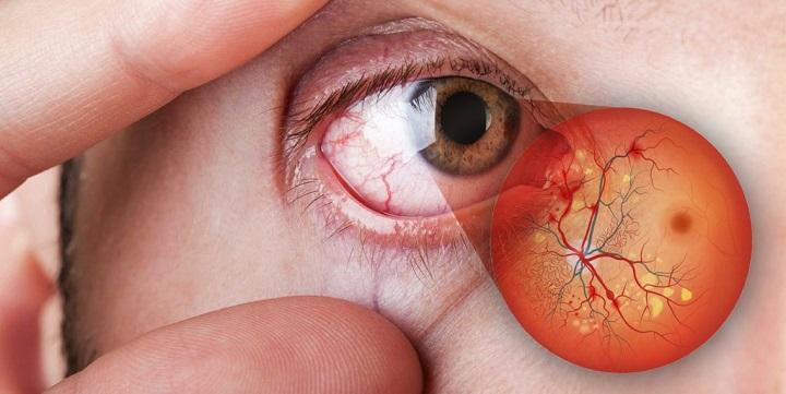 retinopatia diabetica prevenção