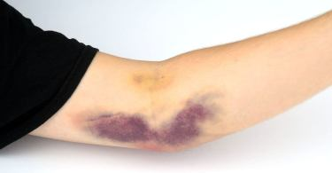 Ways to treat your Hematoma problem naturally