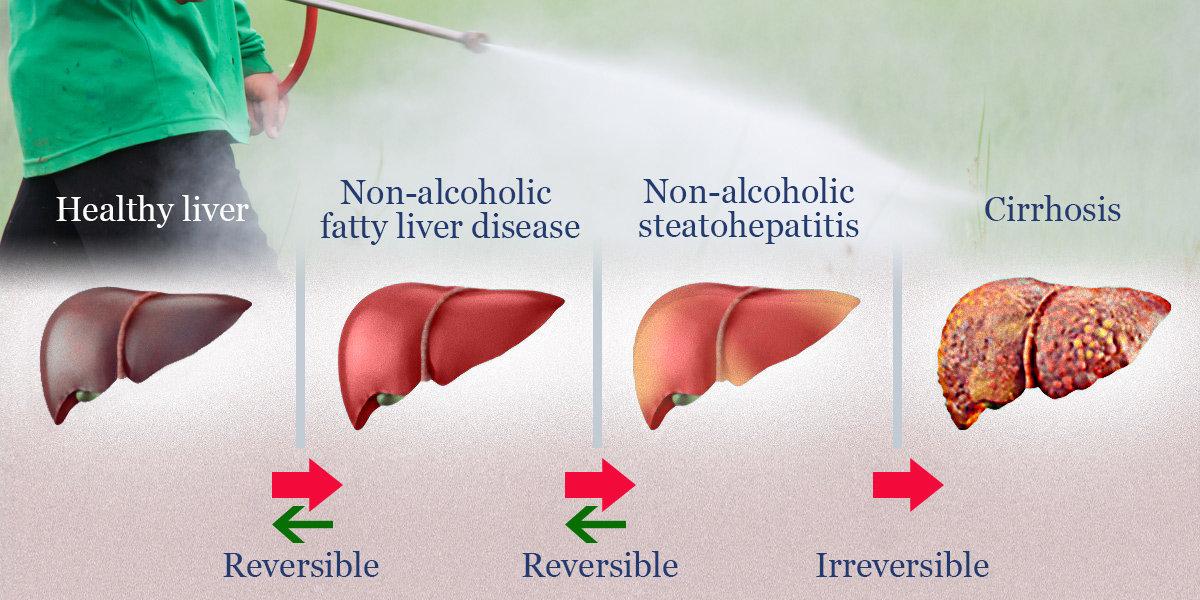 liver fitness