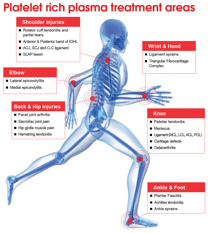 What is PRP Injection For Injury?
