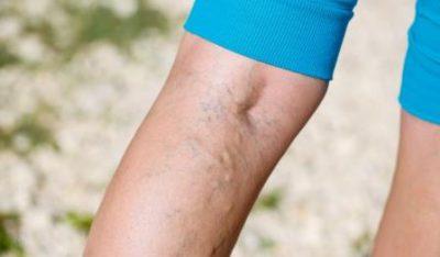 Острый флеботромбоз нижних конечностей. Флеботромбоз — опасность, подстерегающая многих людей