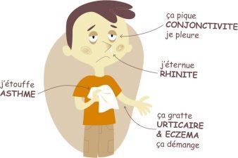 allergie pratique de santé