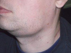 Воспаление подчелюстных лимфоузлов на шее