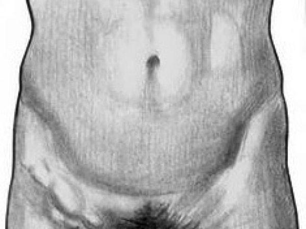 Воспаление лимфоузлов в паху у женщин: причины и лечение.