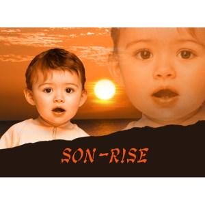 sonrise product