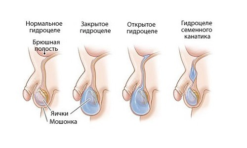 Лечение водянки яичка без операции
