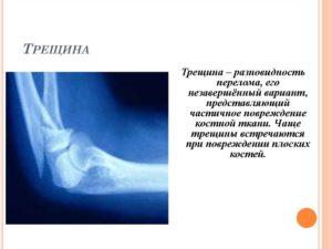 Лечение трещины кости голени ноги симптомы диагностика сроки реабилитации