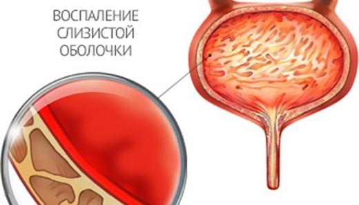 Простужен мочевой пузырь что делать. Застужен мочевой пузырь у мужчин и женщин: симптомы и лечение в домашних условиях, особенности заболевания и меры профилактики