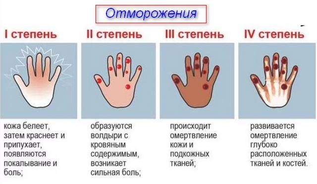 описание признаков травмы