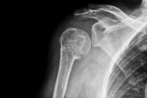 Pros And Cons Of Reverse Shoulder Replacement