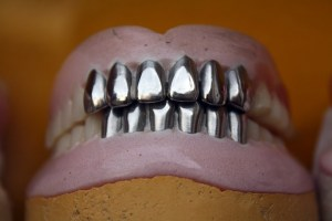 Read more about the article Pros and cons of dentures
