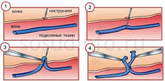 pregătirea pentru operarea varicoasă)